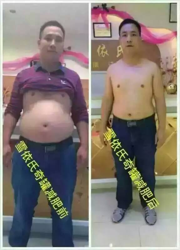 罗麒奇罐减肥